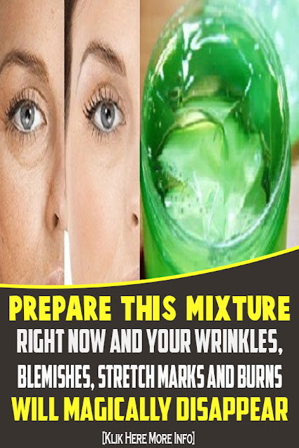 Prepare This Mixture Right Now And Your Wrinkles