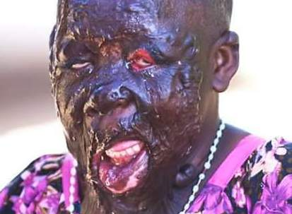 Photo: 14-year-old Tanzanian girl suffers horrific burns in an accident