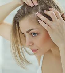 How can you stop your hair from falling out female?