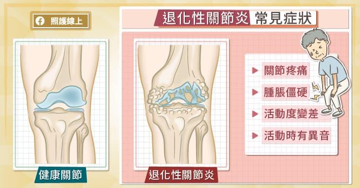 退化性膝關節炎常見症狀