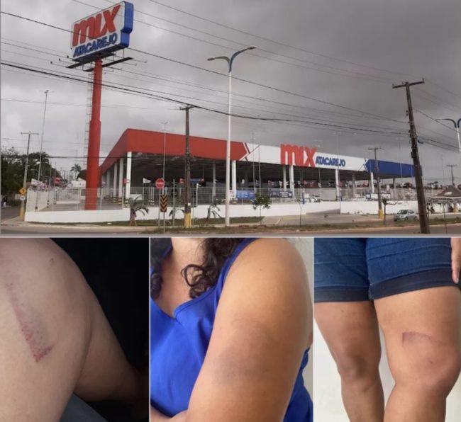 ABSURDO! Mulher diz que foi torturada por seguranças dentro do Mix Mateus