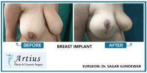 Breast Implant in Navi Mumbai