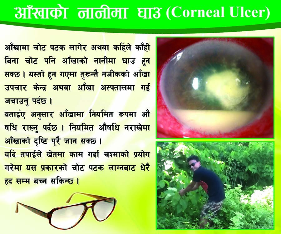 Corneal Ulcer Poster