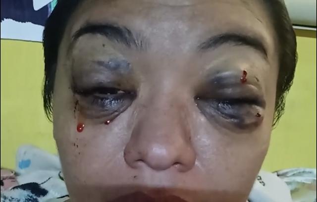 Me estoy muriendo y no quiero: Lucía, una mujer con tumor cerebral