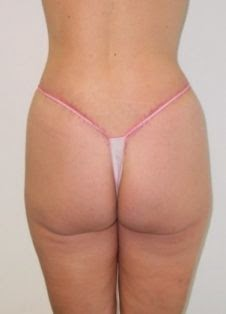 chirurgia plastica caserta