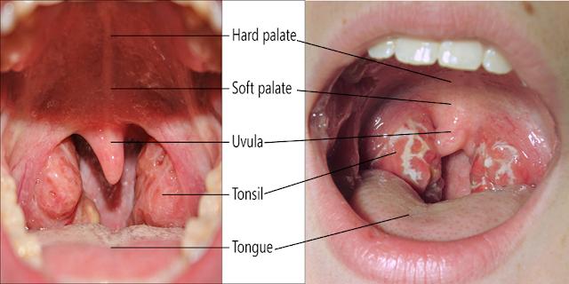 Tonsil Boleh Membawa Maut Jika Tidak Di Rawat
