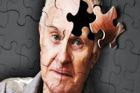 Alzheimer Hastalığı Olan Adam Fotoğrafı