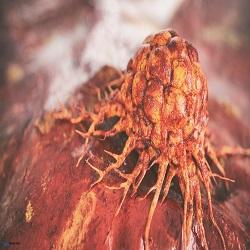 Terapias imunológicas para metástases cerebrais de melanoma