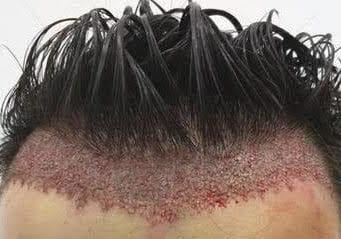 Trasplante de cabello: las diferentes técnicas a conocer