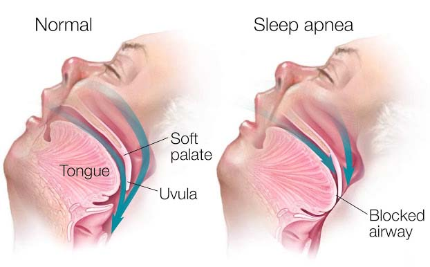 If the breathing is stopped completely, it is known as apnea. On the other hand, hypopnea is not as severe as apnea, where breathing stops completely. Similarly, less amount of air enters the lungs and grounds to drop of oxygen levels in the blood. It generally happens because of incomplete hindrance in the upper air passage.