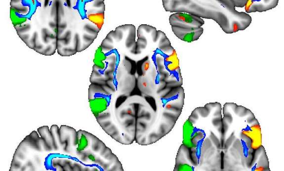 Left-Handed Genes May Influence Alzheimer's, Parkinson's