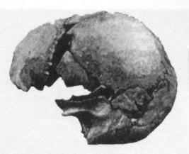 Castenedolo modern skull