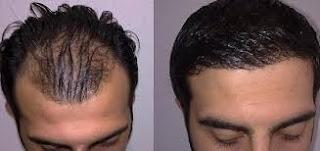 saç ekimi öncesi ve sonrası foto 21