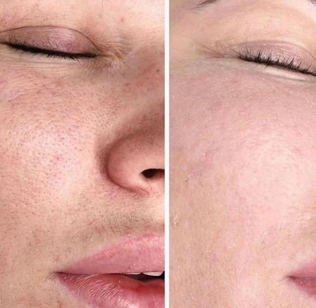 Masque exfoliant fait maison pour nettoyer les pores dès la 1ere applicationMasque exfoliant fait maison pour nettoyer les pores dès la 1ere application