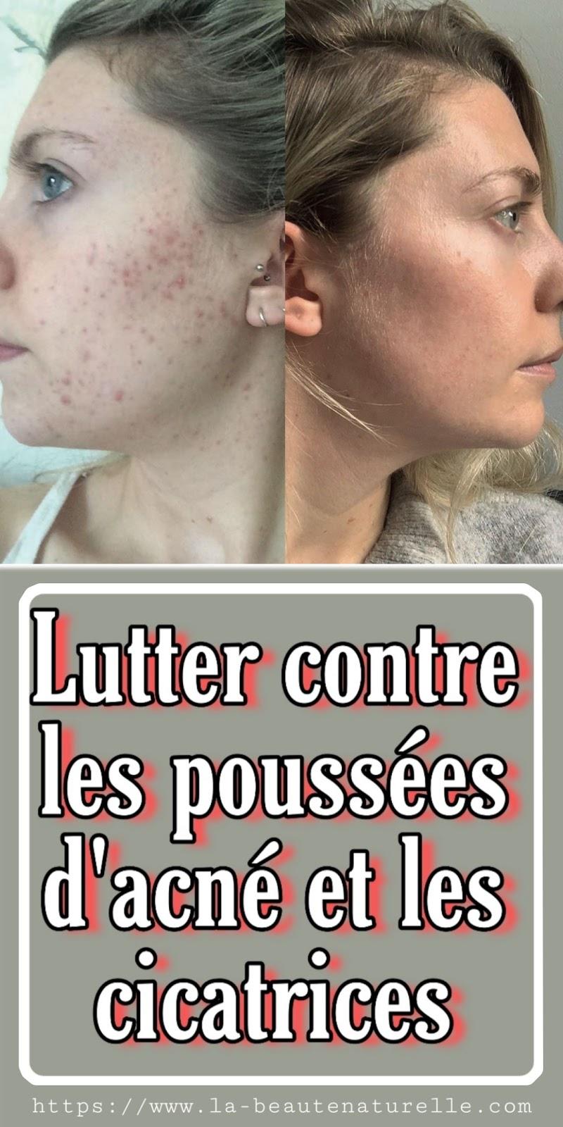 Lutter contre les poussées d'acné et les cicatrices