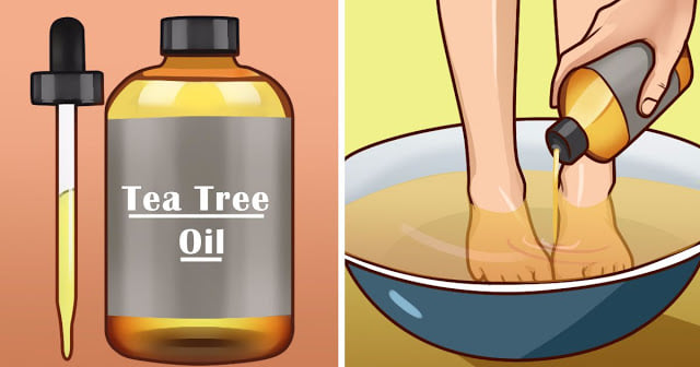 10+ POWERFUL EFFECTS OF TEA TREE OIL ON YOUR HEALTH