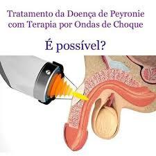 sintomas-de-doenca-de-peyronie