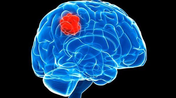 Descubren cambios genéticos relacionados con el cáncer cerebral