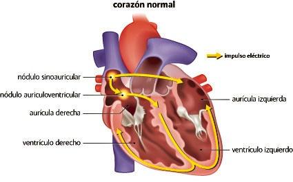 corazón, nódulos