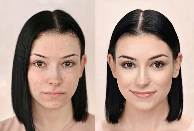Ma grand-mère m'a transmis ces 4 secrets pour effacer les cicatrices d'acné