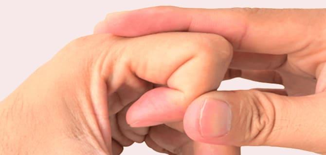 هل فرقعة الأصابع مضرة