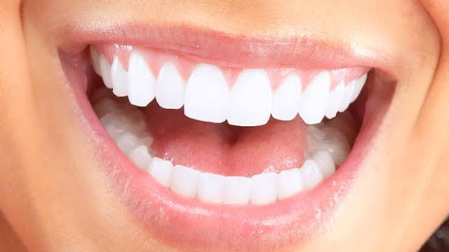 أفضل أنواع أعواد الأسنان
