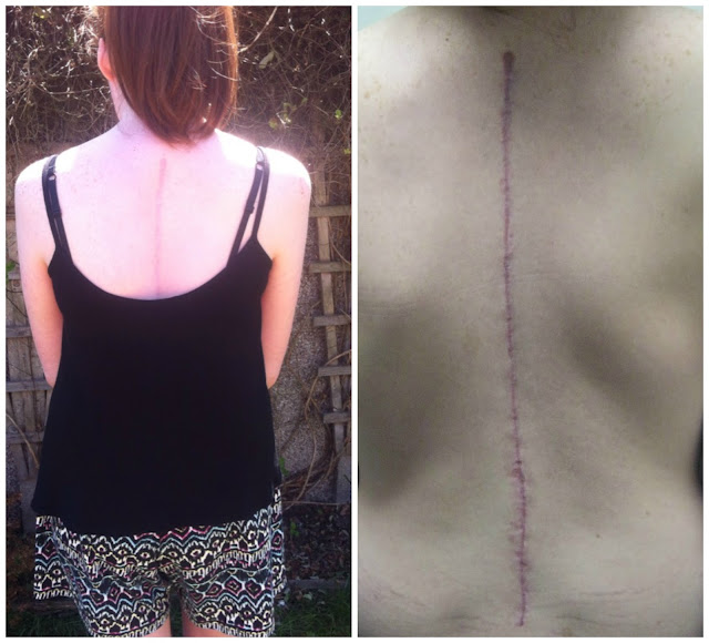 scoliosis marfan syndrome spinal fusion surgery operation awareness