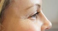 Resultado de imagen de imagenes Antídotos para combatir las arrugas cerca de los ojos