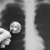 Medidas de Prevenção de Pneumonia Associada à Assistência à Saúde