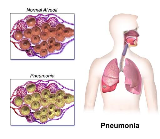 Askep Pneumonia Pada Anak