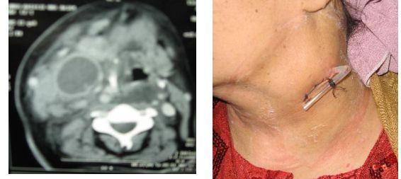 Parapharyngeal-Abscess