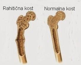Razlika u građi izmedju de-kalcifikovane i normalne kosti Panvet veterinarska ambulanta Subotica