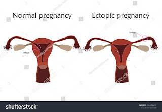 What is Ectopic pregnancy ?