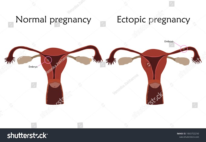 What is Ectopic pregnancy ?| Ectopic pregnancy:symptoms,causes,effects and treatment