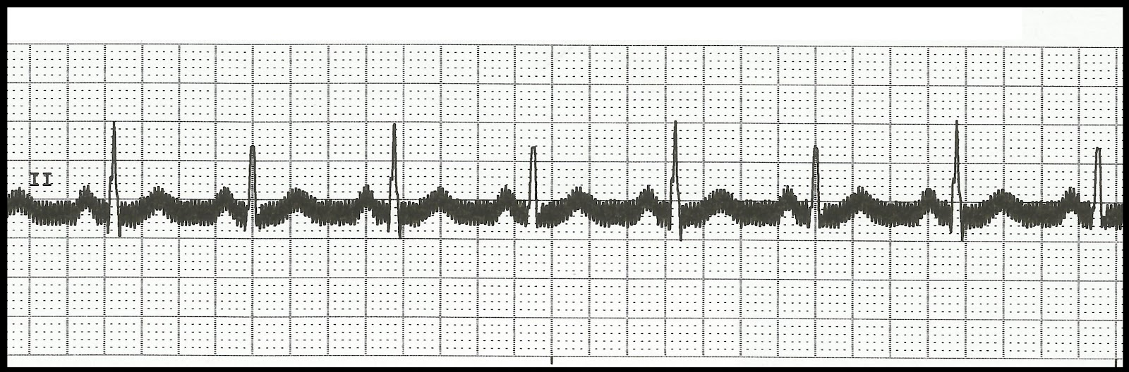Float Nurse Basic Ekg Rhythm Test 04