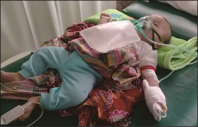 Bayi Elsa Diduga Meninggal Karena ISPA