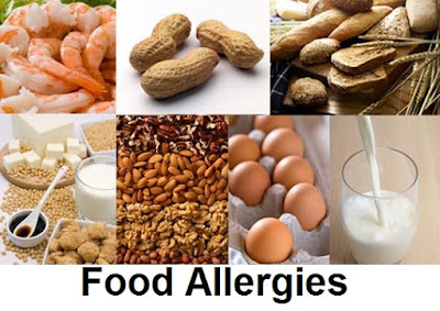 Food Allergies : Shellfish, Nuts, Peanut, Egg, Cow's milk