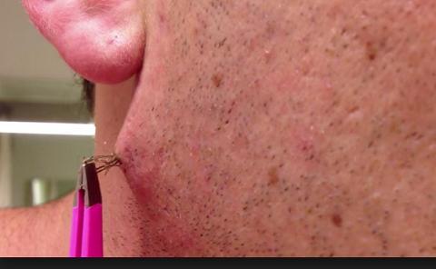 Acne In Hair >> Ingrown Hair Acne