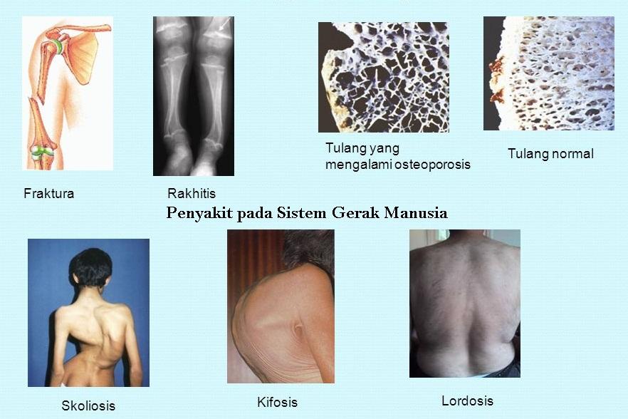 Penyakit (Gangguan / Kelaianan) pada Sistem Gerak Manusia - berbagaireviews.com