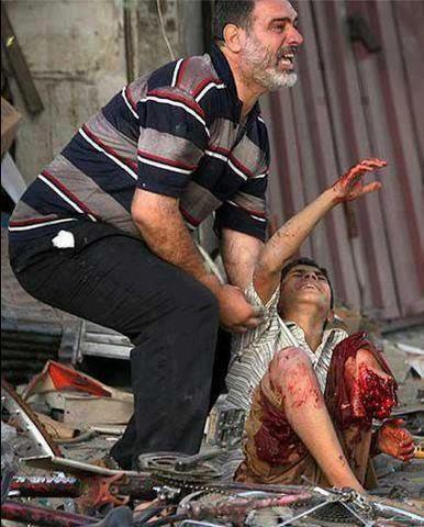 kids, father, wound, israel zalim, pity, perang di gaza, israel and palestine, pray, syahid,