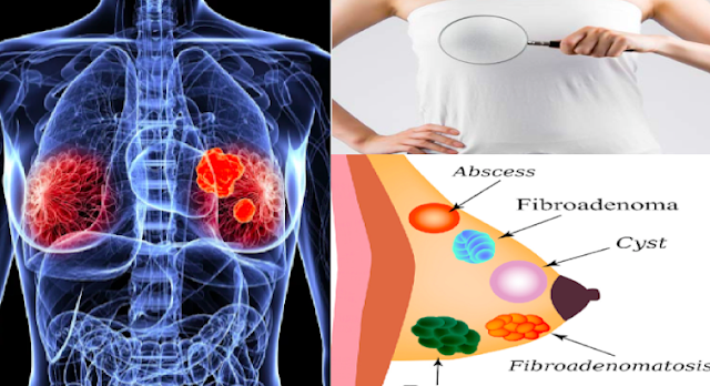 Top 6 Super Nutritious And Healthy Foods That Can Destroy Breast Cysts Naturally