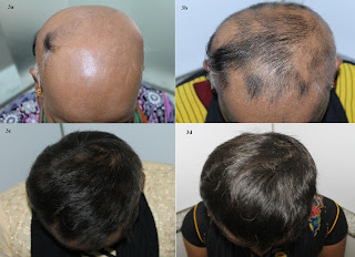 hairfall solution