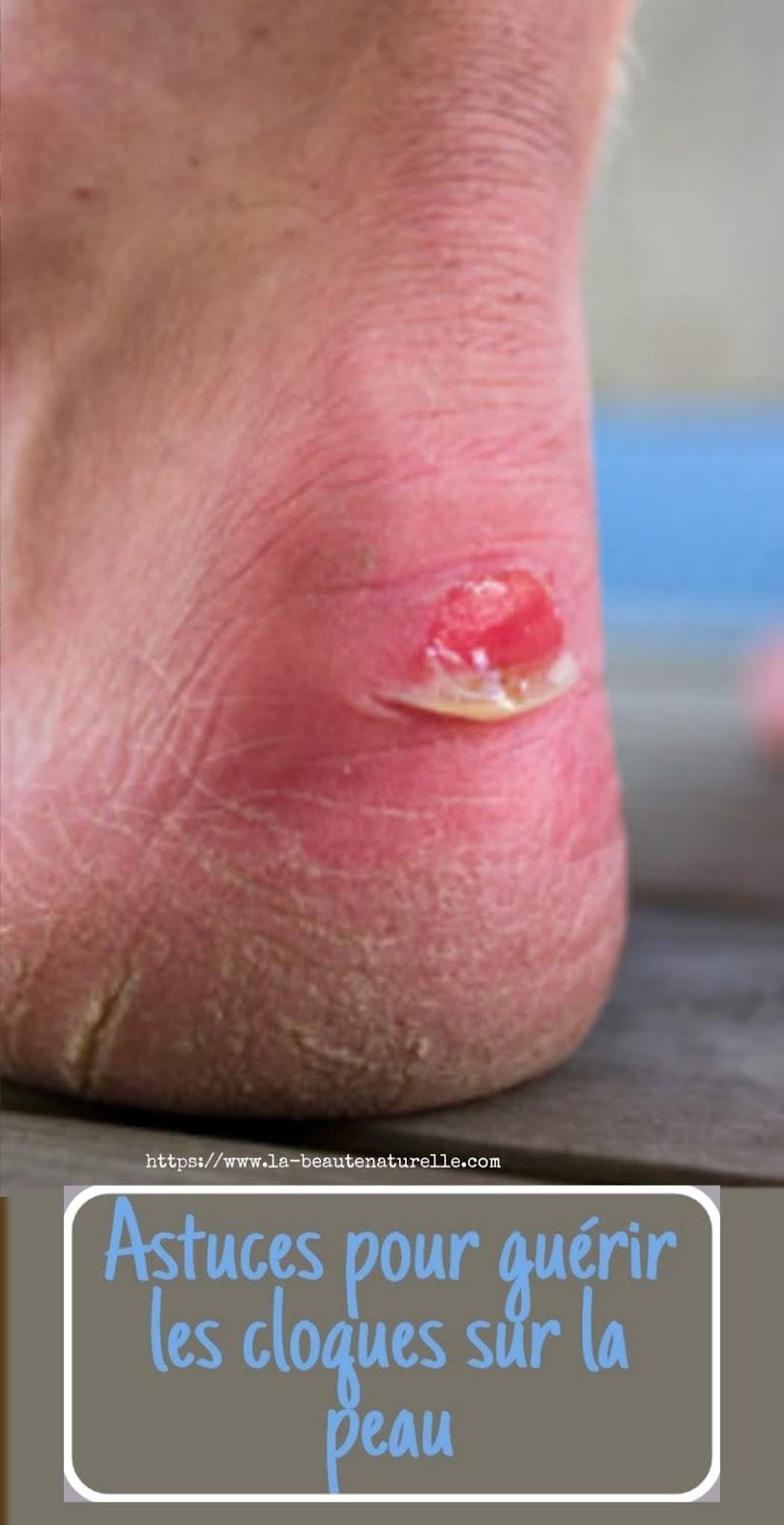 Astuces pour guérir les cloques sur la peau