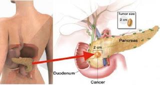 Makanan yang Bisa Tingkatkan Risiko Kanker Pankreas