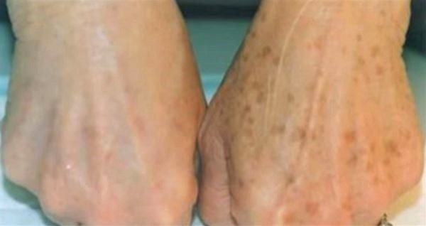 Do you have age spots on your skin With this natural product it will disappear instantly