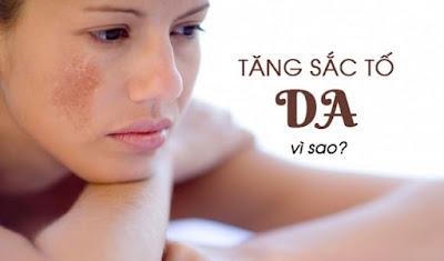 Sạm da ở nữ giới là gì ? nguyên nhân cách điều trị ?