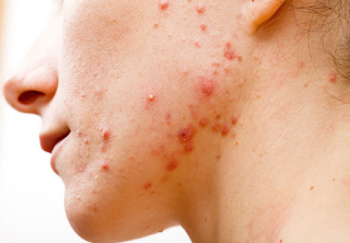 Adult Cystic Acne - Symptoms, Causes and Treatments
