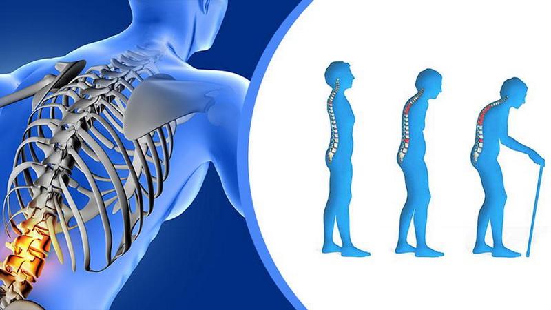Παγκόσμια Ημέρα Οστεοπόρωσης: Η διατροφή στην πρόληψη της οστεοπόρωσης