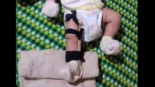 Bình Phước: Cha bạo hành, đánh con 2 tháng tuổi gãy chân vì tội làm mình không ngủ ngon giấc