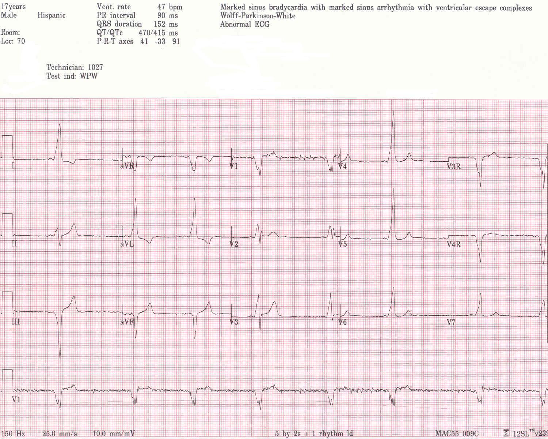 Pedi Cardiology August